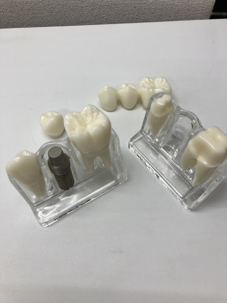 歯牙模型2個セット